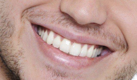 سفیدکننده های دندان چه آسیبی به دندان ها می زنند؟
