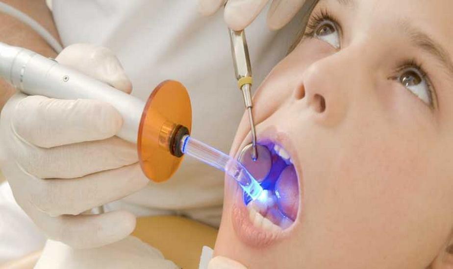 ابداع ماده پُر کردن دندان با ماندگاری دو برابری