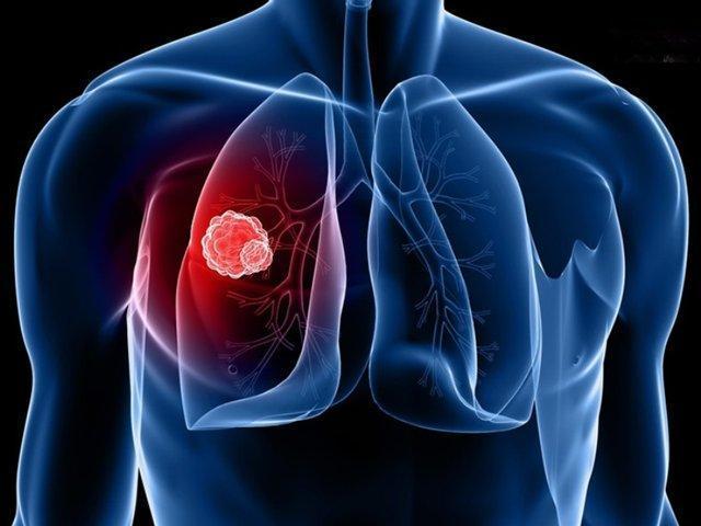 کرونا بیماری تنفسی است یا مشکل خونی؟