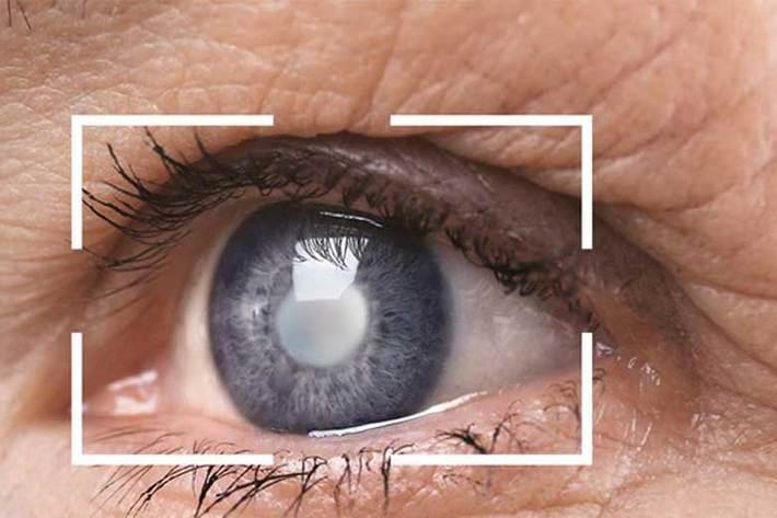مبتلایان به بیماری های چشم درمان را جدی بگیرند