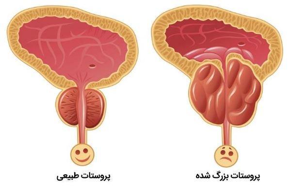 علائم عظیم شدن پروستات در مردان